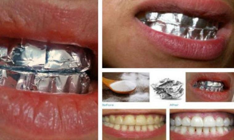 Cara Cepat Memutihkan Gigi Menggunakan Aluminium Foil