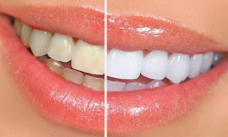 Ilustrasi gigi sebelum dan sesudah dibersihkan. (Dok:net)