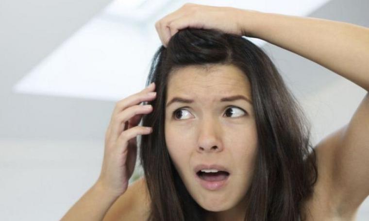 Ilustrasi rambut beruban. (Dok: perawatan-rambut)