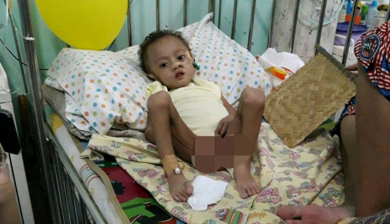 Muhamad Hadi (2) bocah penderita gizi buruk tengah menjalani perawatan di RSUD Adjidarmo, Rangkasbitung. (Foto: TitikNOL)