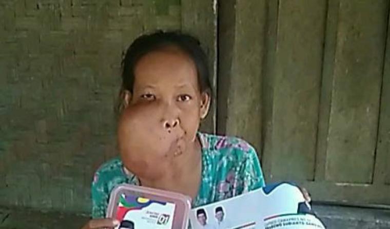 Rukayah (40) warga Kampung Babakan RT/002 RW/001, Desa Anggalan, Kecamatan Cikulur, Kabupaten Lebak, menderita tumor di wajah. (Foto: TitikNOL)