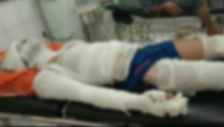 Salah satu korban mengalami luka bakar serius. (Foto: TitikNOL)