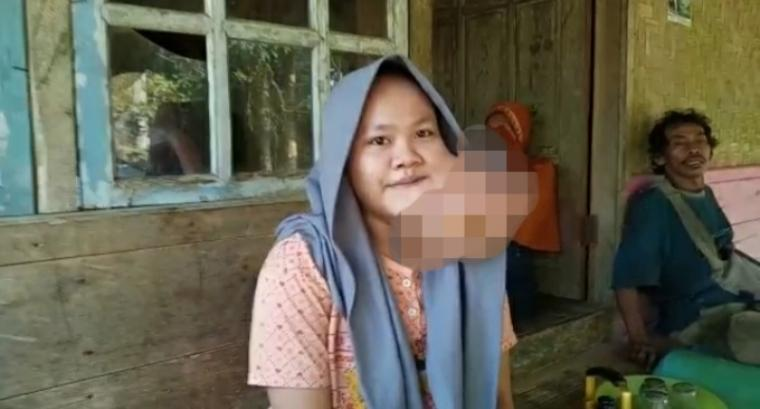 Susilawati, penderita tumor rahang. (Foto: TitikNOL)