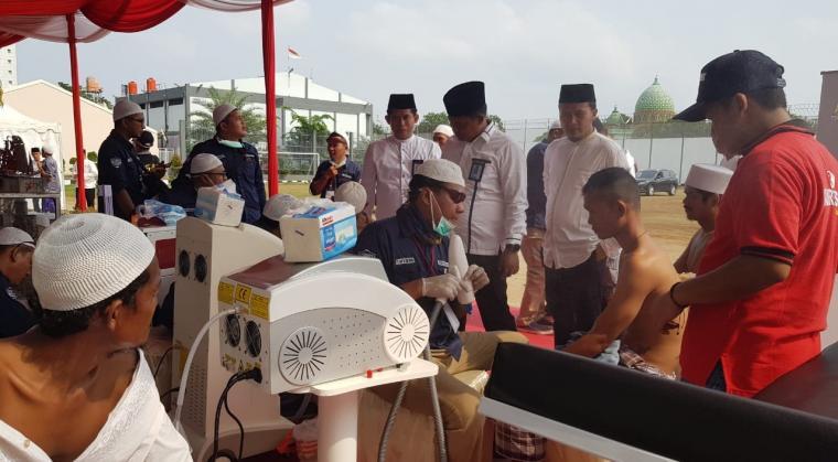 Kegiatan menghapus tato warga binaan Lembaga Pemasyarakatan (Lapas) Kelas I Tangerang. (Foto: TitikNOL)